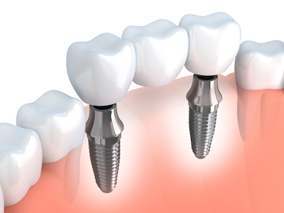 3D image of a dental implant, a common cosmetic dentistry service used to replace a missing tooth.